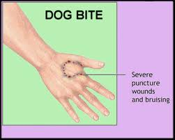 First Aid for Animal Bites